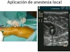 14940-pasos-tratamiento-endovascular-03