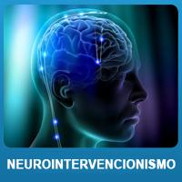 Neurointervencionismo